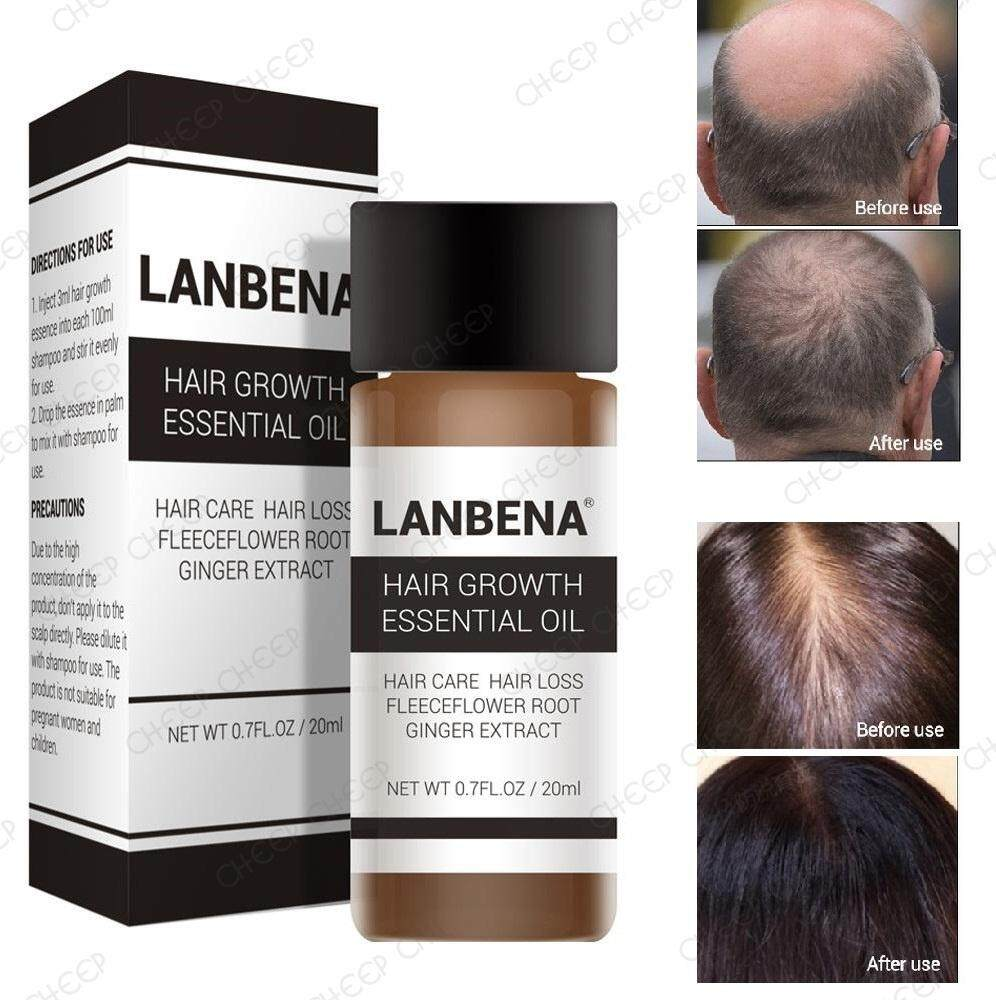 Lanbena Hair Growth Essential Oil for Hair Loss Hair Fall Premature Grey with Ginger Ginseng He Shou Wu To Add Into Shampoo 20ml