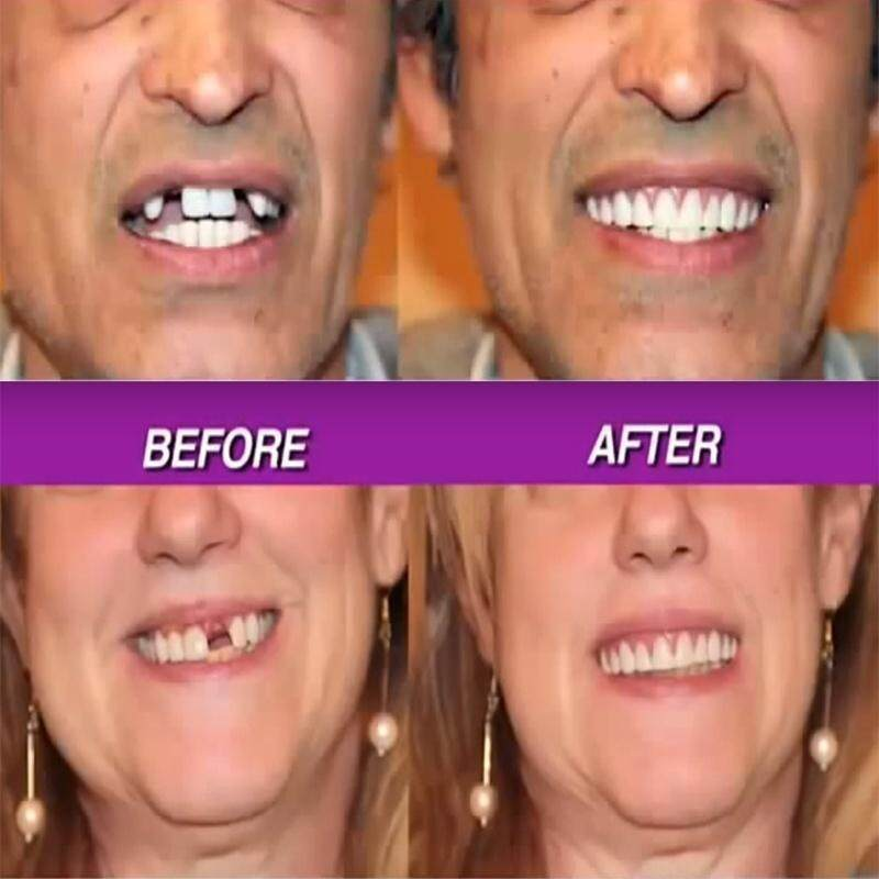 Review Instant Smile Veneer Set With Small Top Set Of White