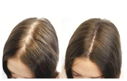 biotin-before-and-after.jpg