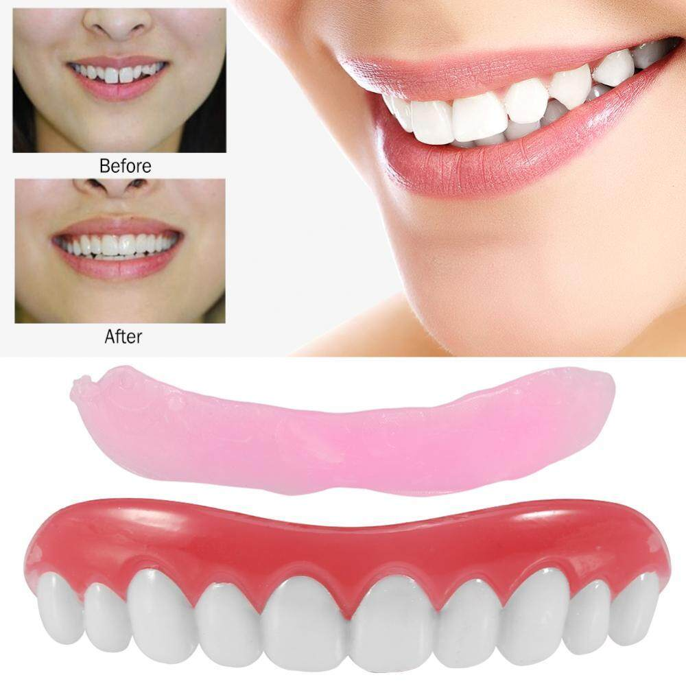 Perfect Smile Veneers в Уральске