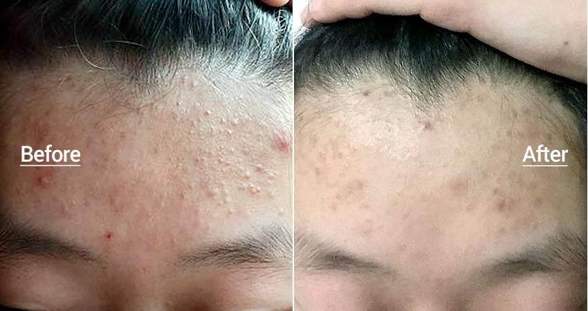 One Step Pimple Clear Pads-4.jpg