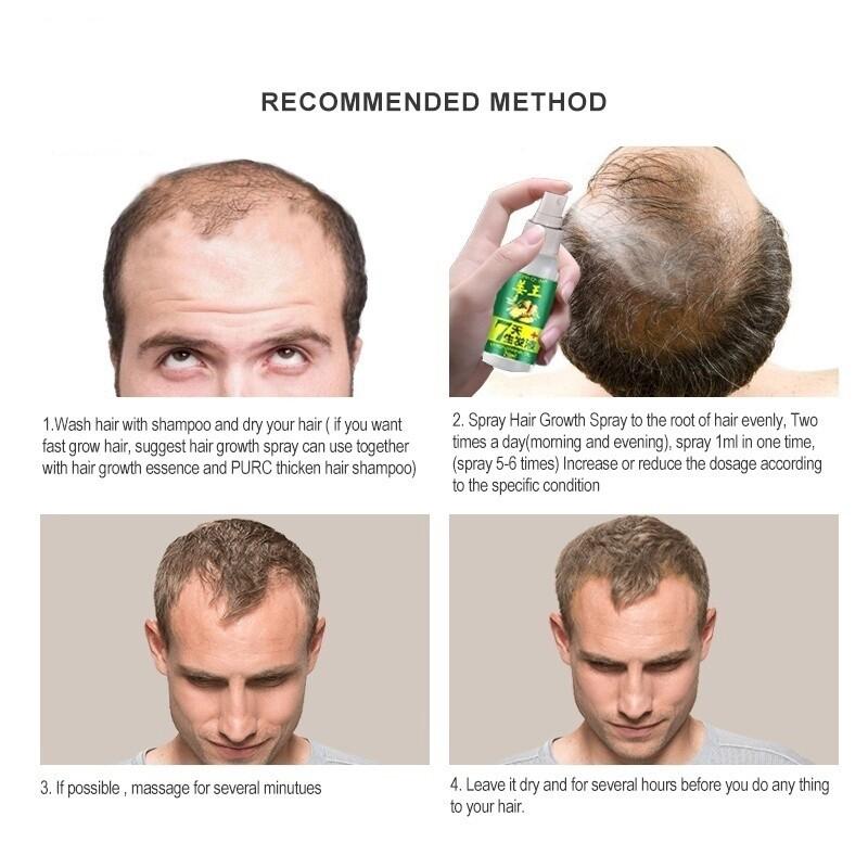 【Ready Stock】30ml Ginger Hair Growth Serum Hair Loss Treatment Hair Care for Men and Women 姜王 生姜头发液 C705508M