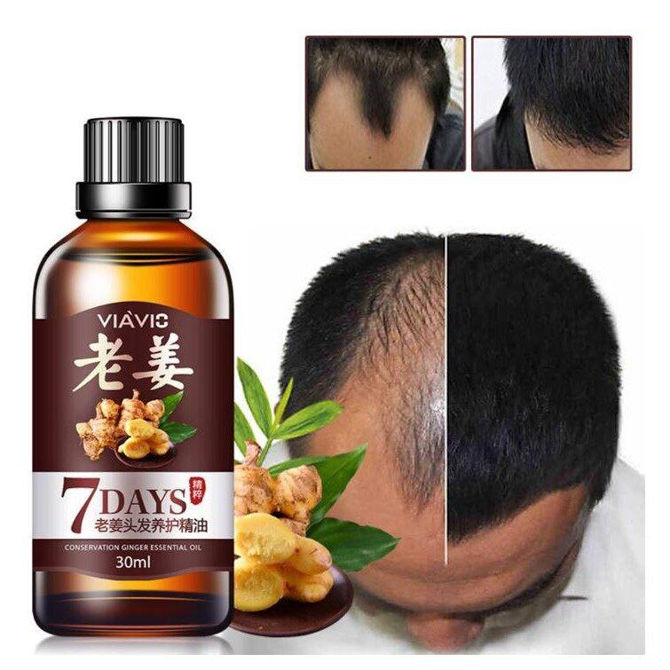 Ginger Juice Hair Growth/Hair Loss Regrowth Treatment Serum