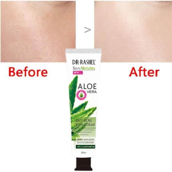 Dr Rashel Anti Acne Pimple Cream 30ml