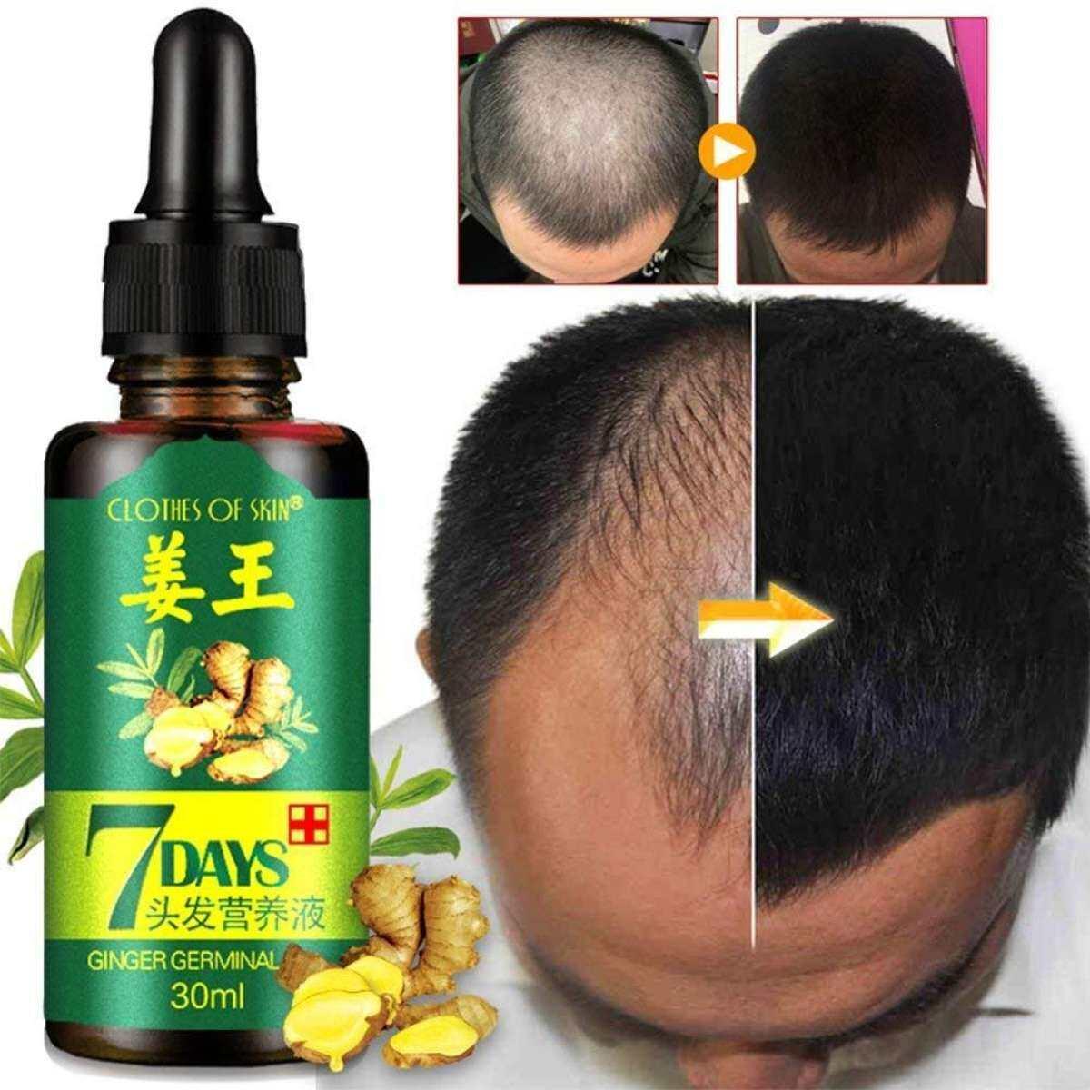 Ginger Germinal Hair Growth/Hair Loss Essential Oil Treatment 30ml