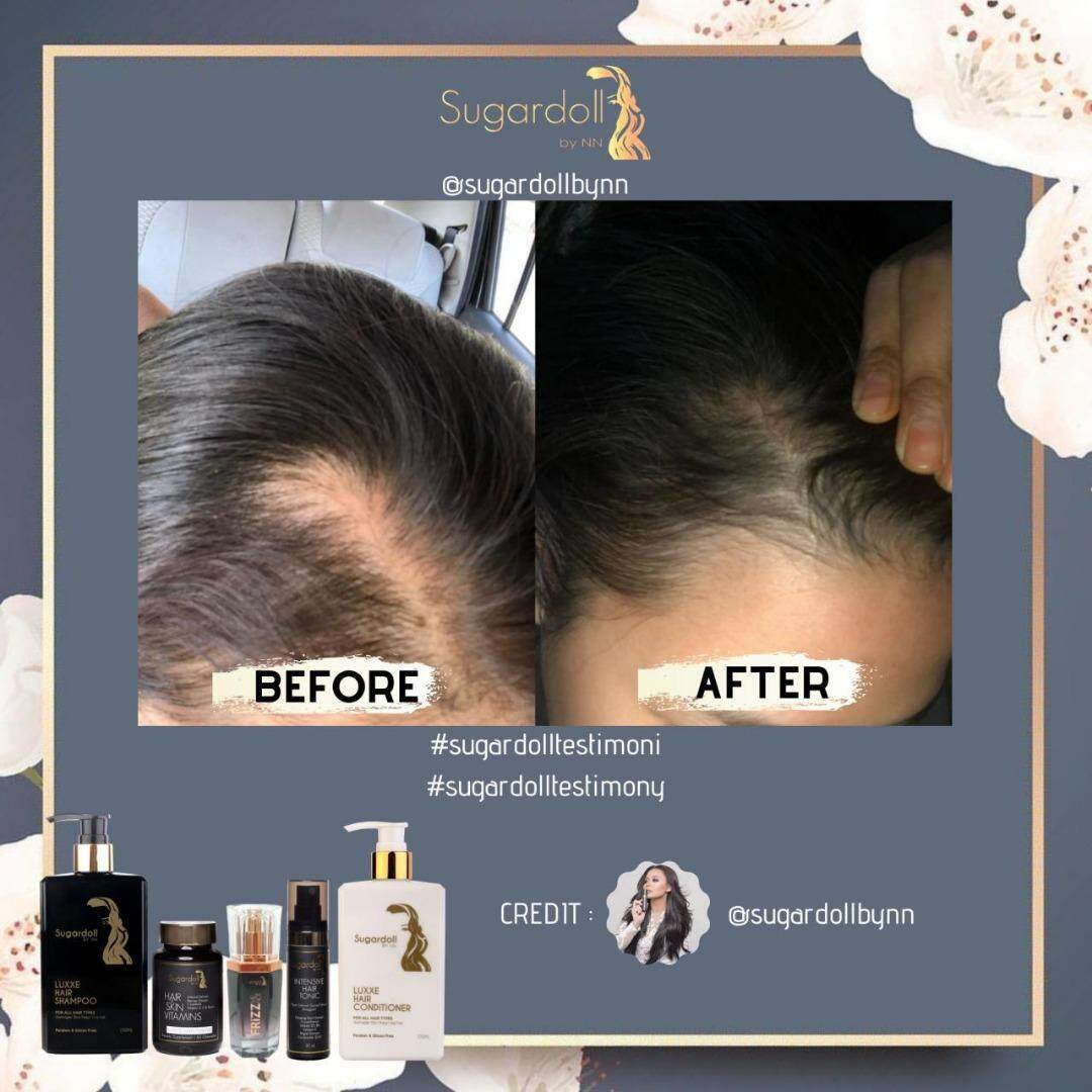 [Hair Loss Treatment] Sugardoll Hair & Skin Vitamins + Intensive Hair Tonic + Hair Serum + Free Gift